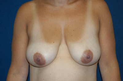 Breast Lift Gallery - Patient 6389707 - Image 1