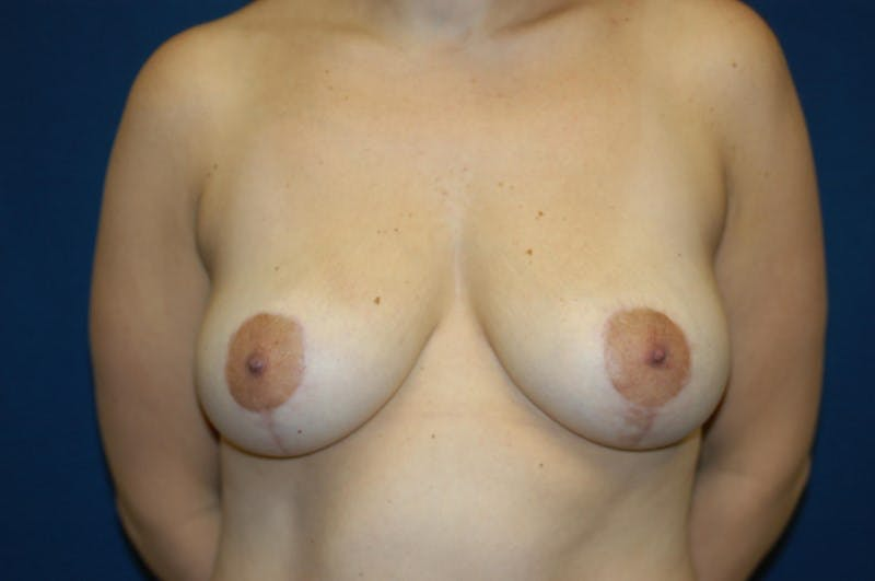 Breast Lift Gallery - Patient 6389707 - Image 2