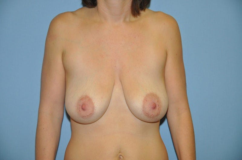 Breast Lift Gallery - Patient 6389708 - Image 1