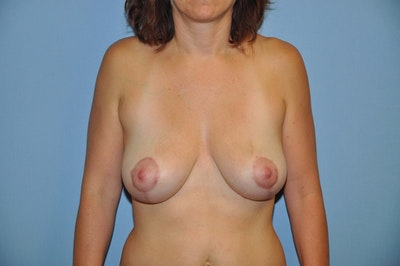 Breast Lift Gallery - Patient 6389708 - Image 2