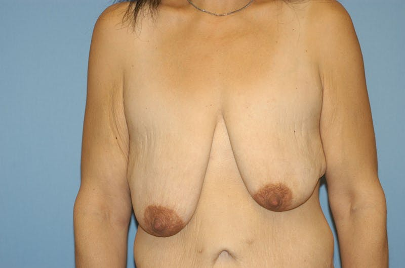 Breast Lift Gallery - Patient 6389711 - Image 1