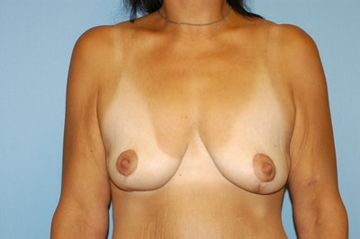 Breast Lift Gallery - Patient 6389711 - Image 2