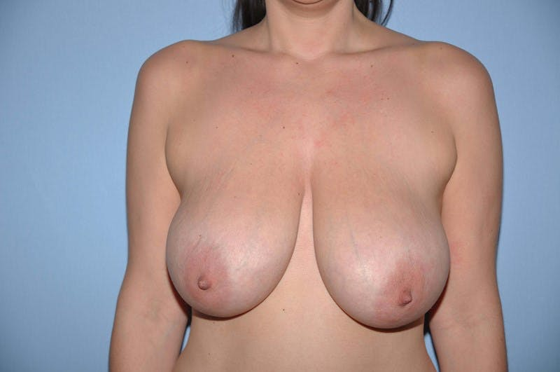 Breast Lift Gallery - Patient 6389712 - Image 1