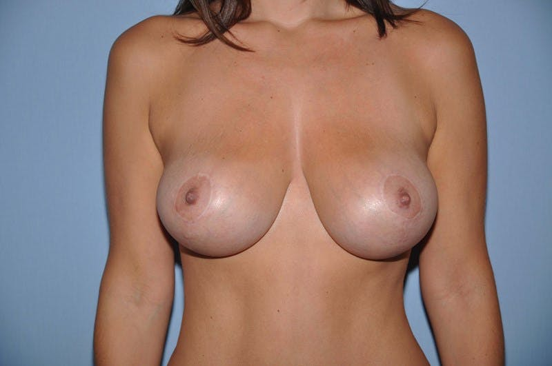 Breast Lift Gallery - Patient 6389712 - Image 2