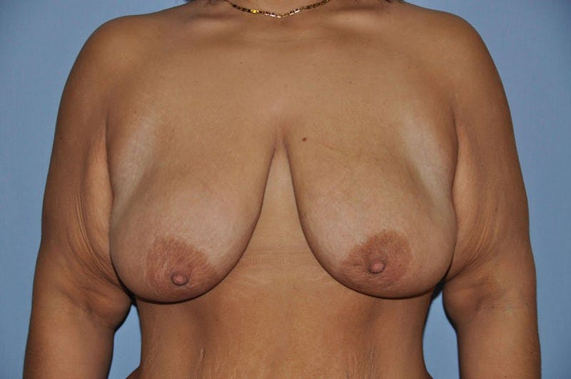 Breast Lift Gallery - Patient 6389715 - Image 1