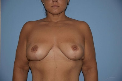 Breast Lift Gallery - Patient 6389715 - Image 2