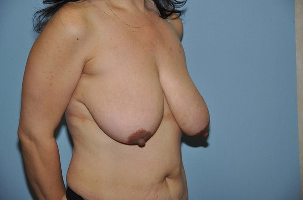Breast Lift Gallery - Patient 6389718 - Image 3