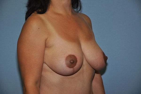 Breast Lift Gallery - Patient 6389718 - Image 4