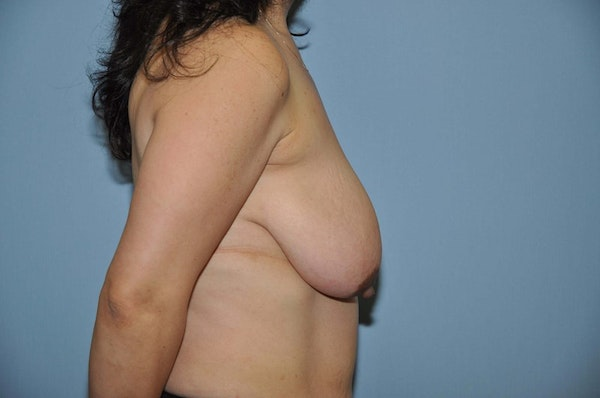 Breast Lift Gallery - Patient 6389718 - Image 5