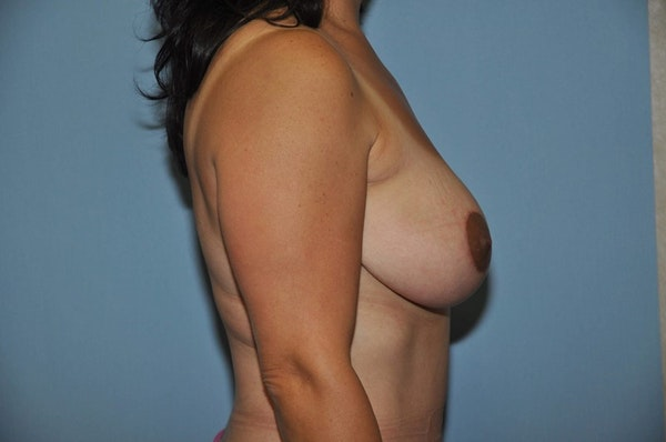 Breast Lift Gallery - Patient 6389718 - Image 6