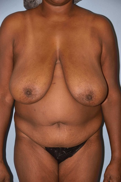 Breast Lift Gallery - Patient 6389719 - Image 1