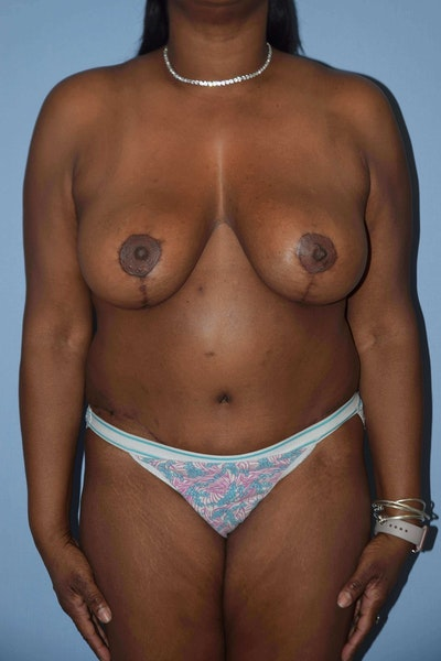 Breast Lift Gallery - Patient 6389719 - Image 2