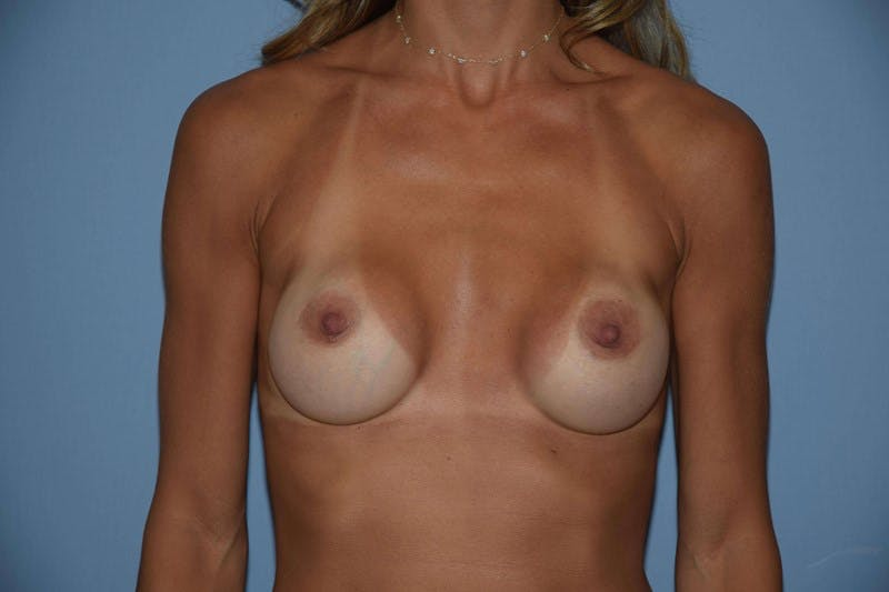 Breast Revision Gallery - Patient 6389720 - Image 1