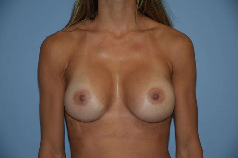 Breast Revision Gallery - Patient 6389720 - Image 2