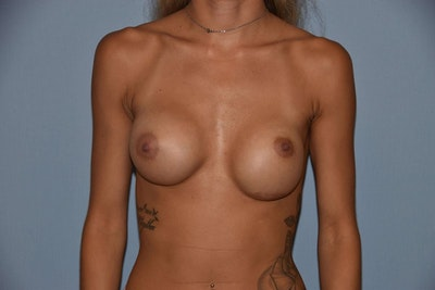 Breast Revision Gallery - Patient 6389724 - Image 1