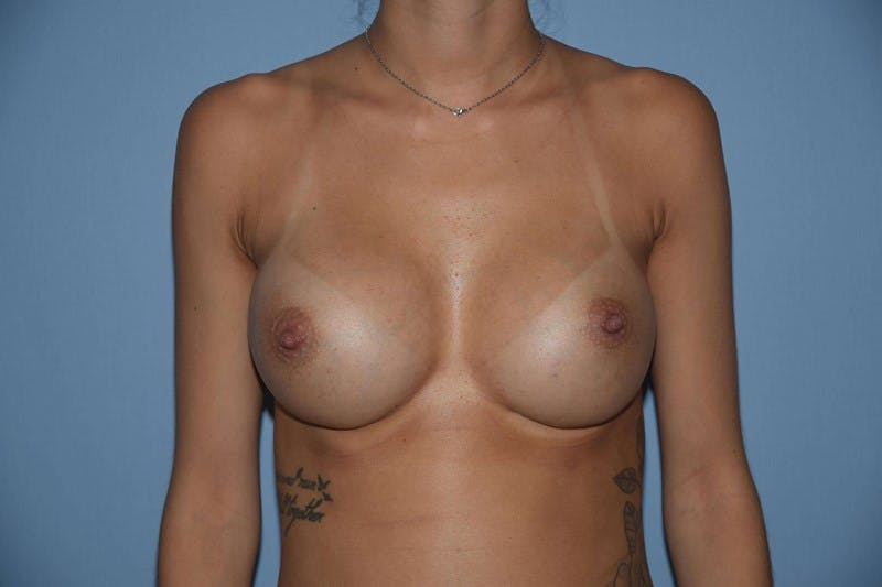 Breast Revision Gallery - Patient 6389724 - Image 2