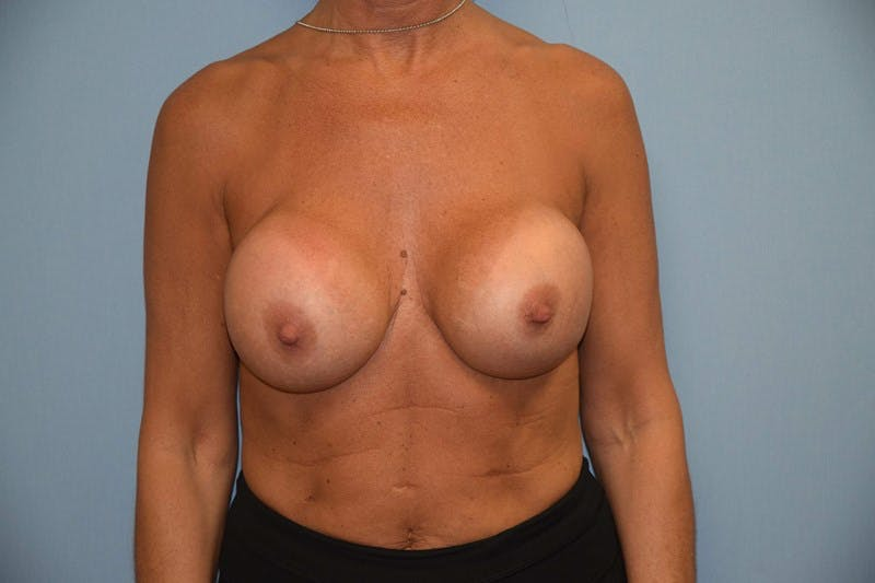 Breast Revision Gallery - Patient 6389725 - Image 1