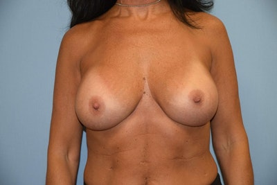 Breast Revision Gallery - Patient 6389725 - Image 2