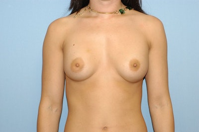 Breast Revision Gallery - Patient 6389726 - Image 1