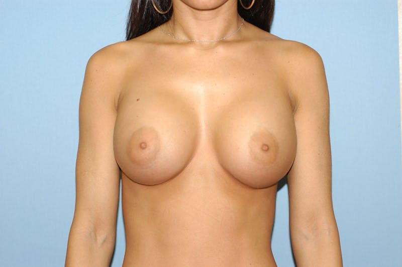 Breast Revision Gallery - Patient 6389726 - Image 2