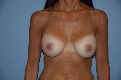 Breast Revision Gallery - Patient 6389728 - Image 1
