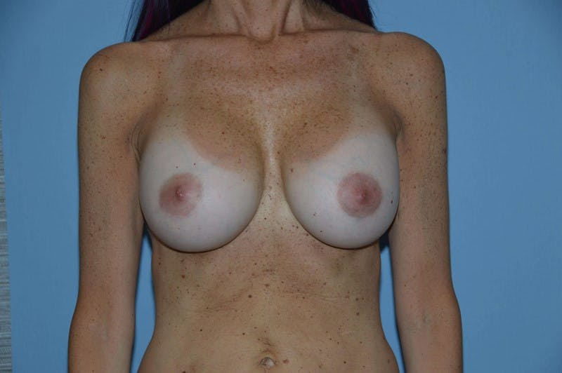 Breast Revision Gallery - Patient 6389728 - Image 2