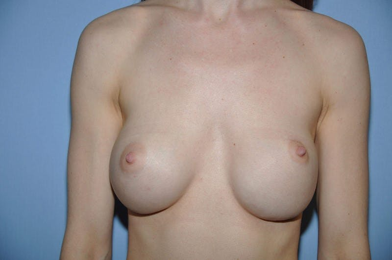Breast Revision Gallery - Patient 6389729 - Image 1