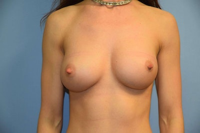 Breast Revision Gallery - Patient 6389729 - Image 2
