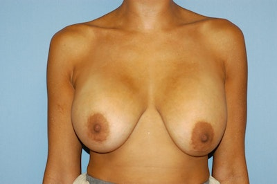 Breast Revision Gallery - Patient 6389731 - Image 1