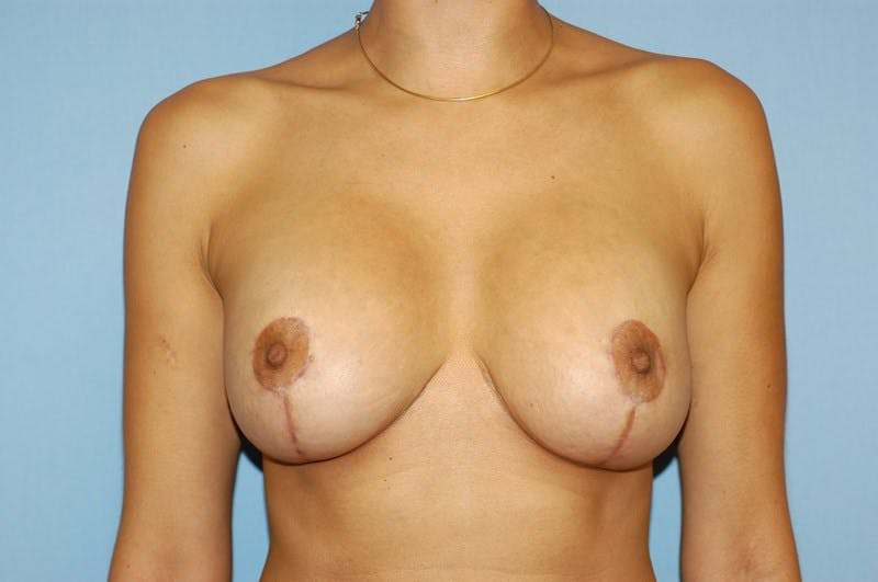 Breast Revision Gallery - Patient 6389731 - Image 2