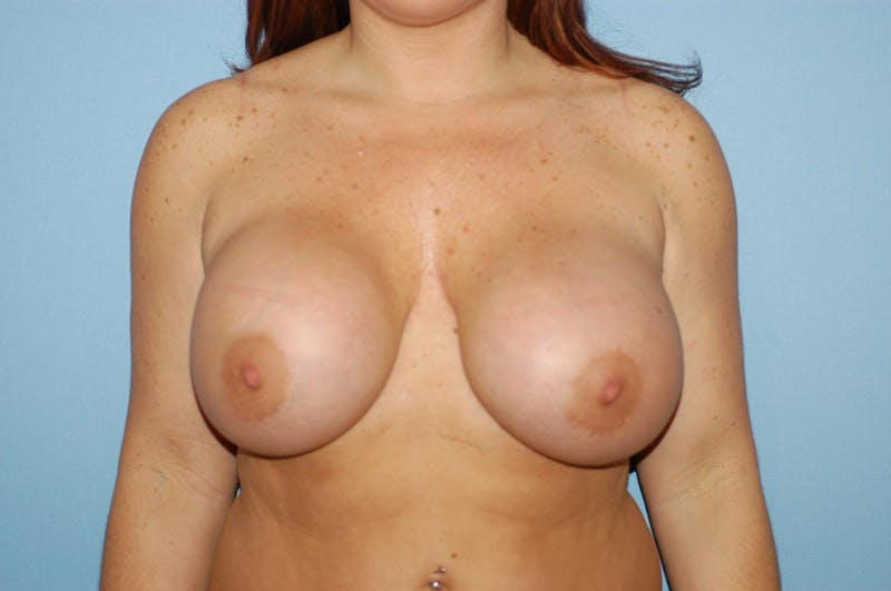 Breast Revision Gallery - Patient 6389732 - Image 1