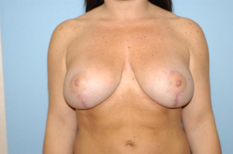 Breast Revision Gallery - Patient 6389732 - Image 2