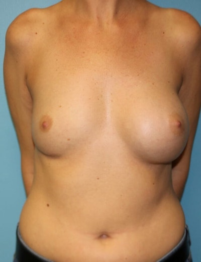 Breast Revision Gallery - Patient 6389733 - Image 1