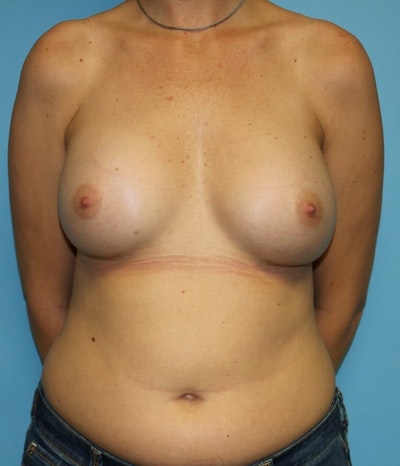 Breast Revision Gallery - Patient 6389733 - Image 2