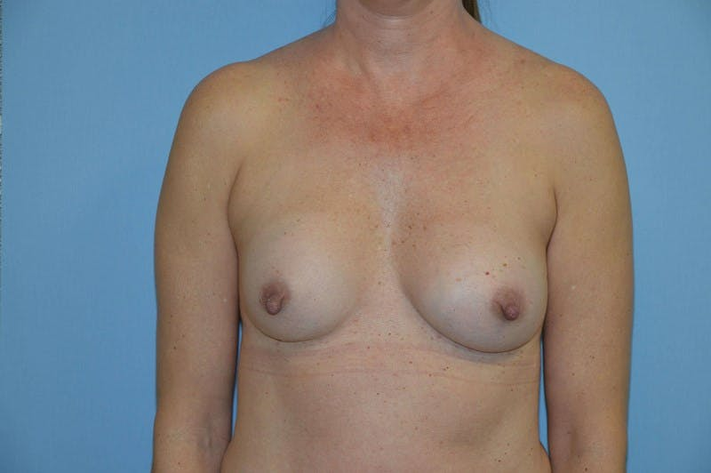 Breast Revision Gallery - Patient 6389737 - Image 1