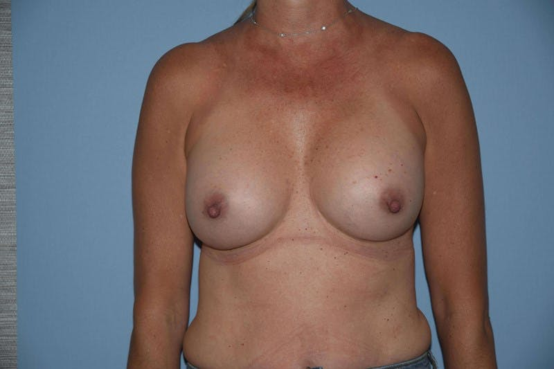 Breast Revision Gallery - Patient 6389737 - Image 2