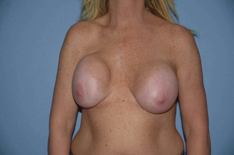 Breast Revision Gallery - Patient 6389739 - Image 1
