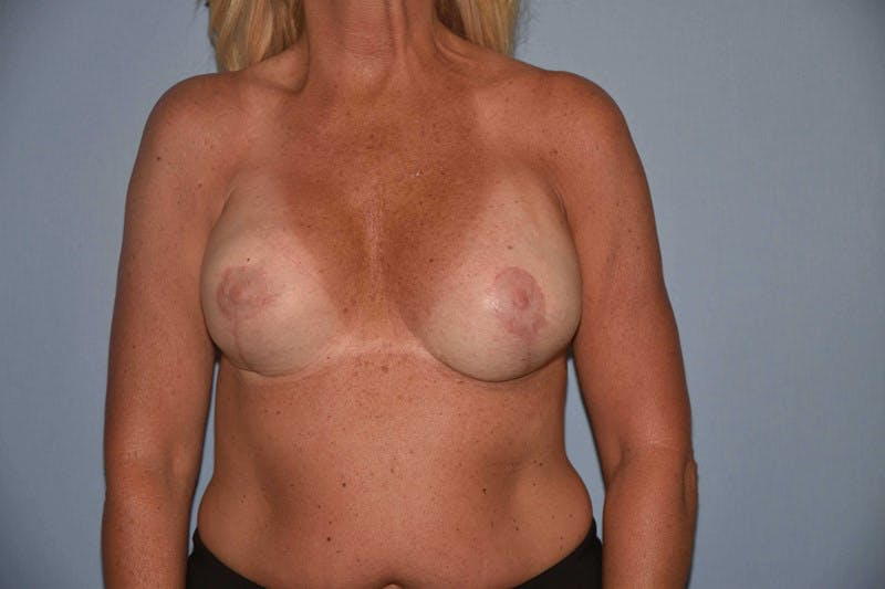Breast Revision Gallery - Patient 6389739 - Image 2
