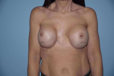 Breast Revision Gallery - Patient 6389741 - Image 1