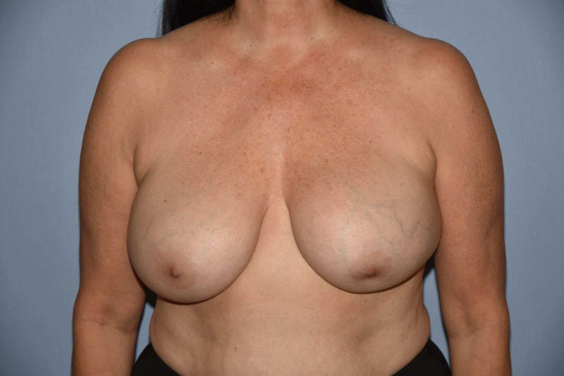 Breast Revision Gallery - Patient 6389743 - Image 1