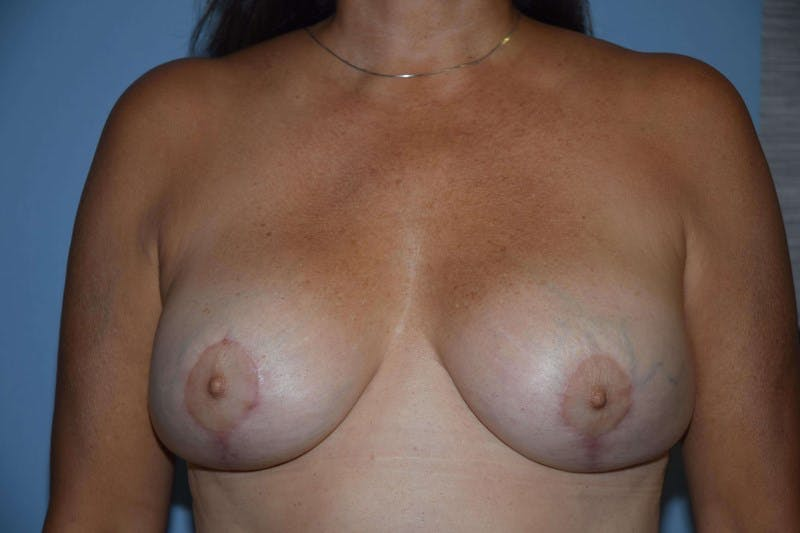 Breast Revision Gallery - Patient 6389743 - Image 2