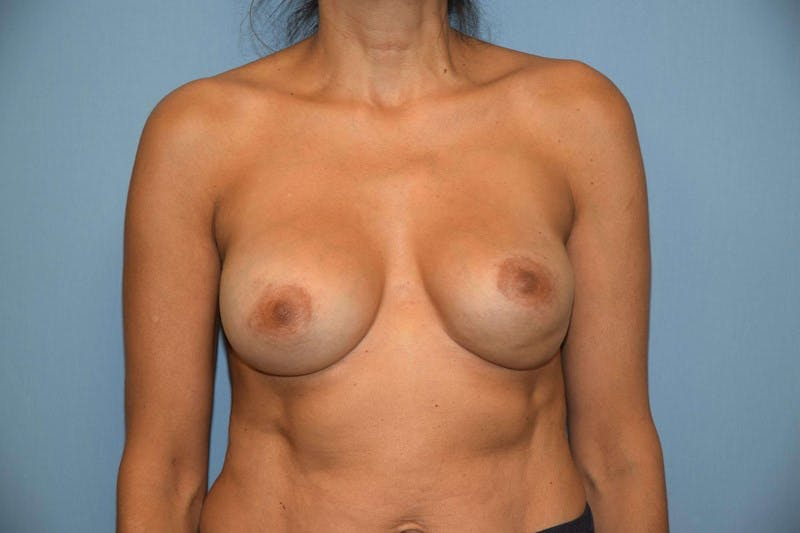 Breast Revision Gallery - Patient 6389744 - Image 1
