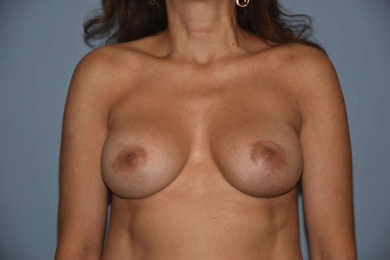 Breast Revision Gallery - Patient 6389744 - Image 2