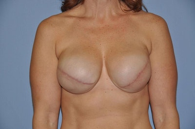 Breast Reconstruction Gallery - Patient 6389745 - Image 1