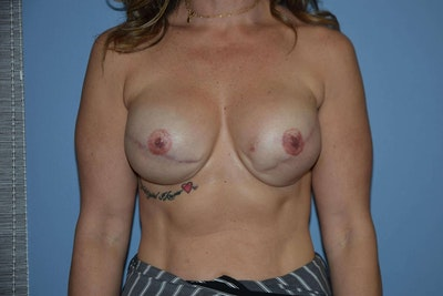 Breast Reconstruction Gallery - Patient 6389745 - Image 2