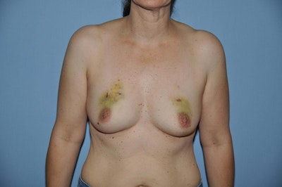 Breast Reconstruction Gallery - Patient 6389747 - Image 1