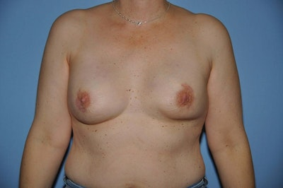 Breast Reconstruction Gallery - Patient 6389747 - Image 2