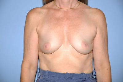 Breast Reconstruction Gallery - Patient 6389750 - Image 3