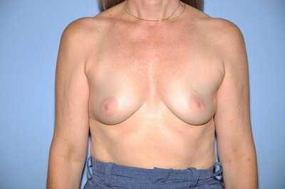 Breast Reconstruction Gallery - Patient 6389750 - Image 1