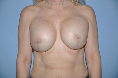 Breast Reconstruction Gallery - Patient 6389750 - Image 2